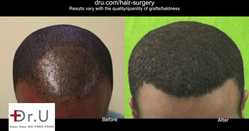 Does FUE work on African Americans?