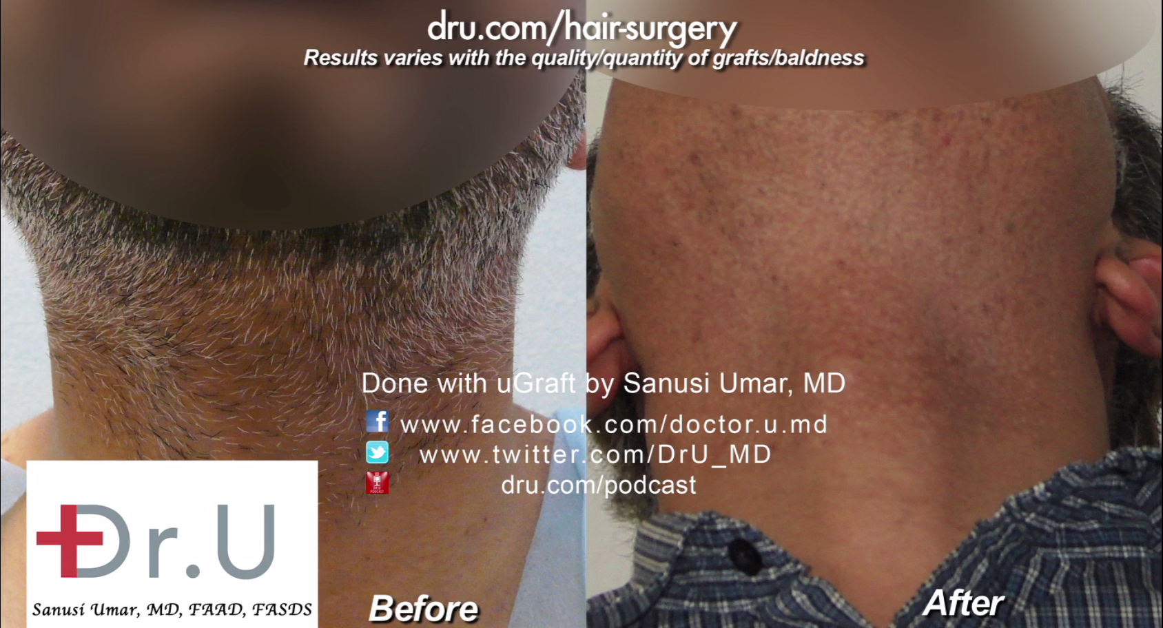 Over 4,000 grafts pulled from beard by Dr.UGraft.