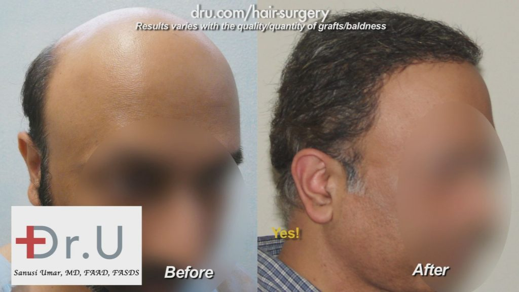 Full hair restoration by the Dr.UGraft Revolution system.