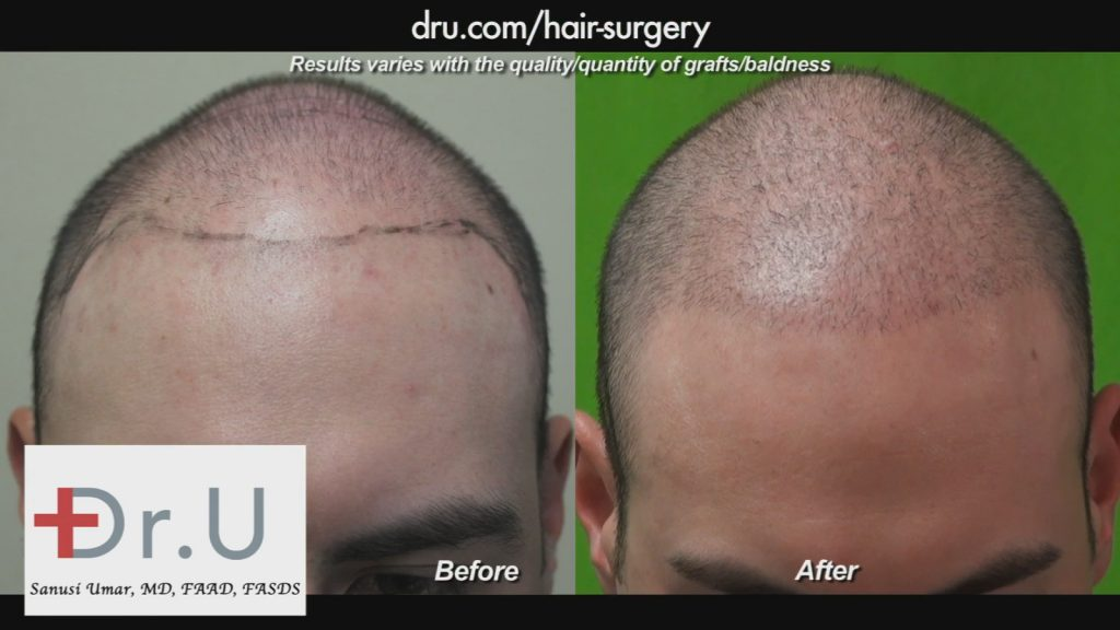 Young men on budgets can choose to utilize conservative hair transplant procedures.