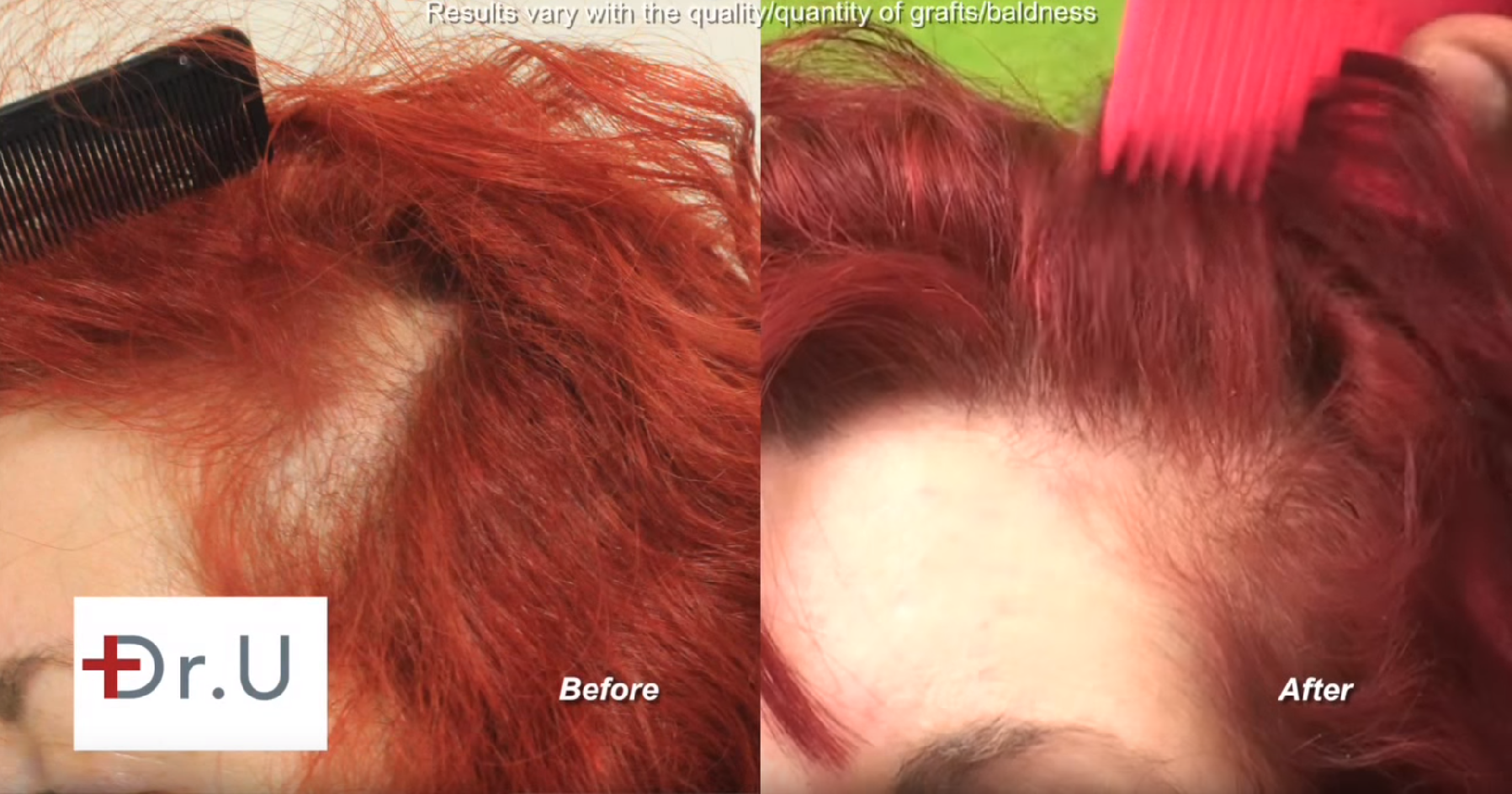 Dr. U restored the patient's hairline with 200 grafts to her temple area using his patented Dr.UGraft system.