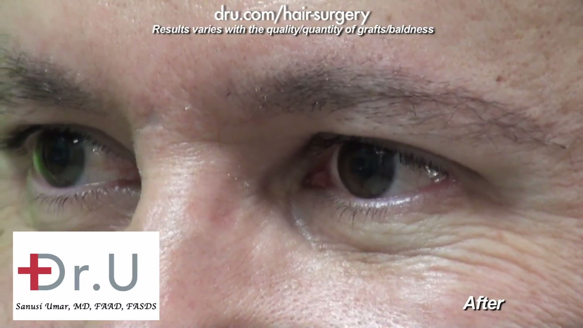 The patient opted for a more inconspicuous eyebrow restoration, so Dr. U used 300 grafts to create a fuller brow. The result of the male eyebrow transplant is a more youthful appearance.