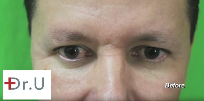 This patient was embarrassed by his eyebrow hair loss, so he consulted with Dr. U about an eyebrow reconstruction surgery.
