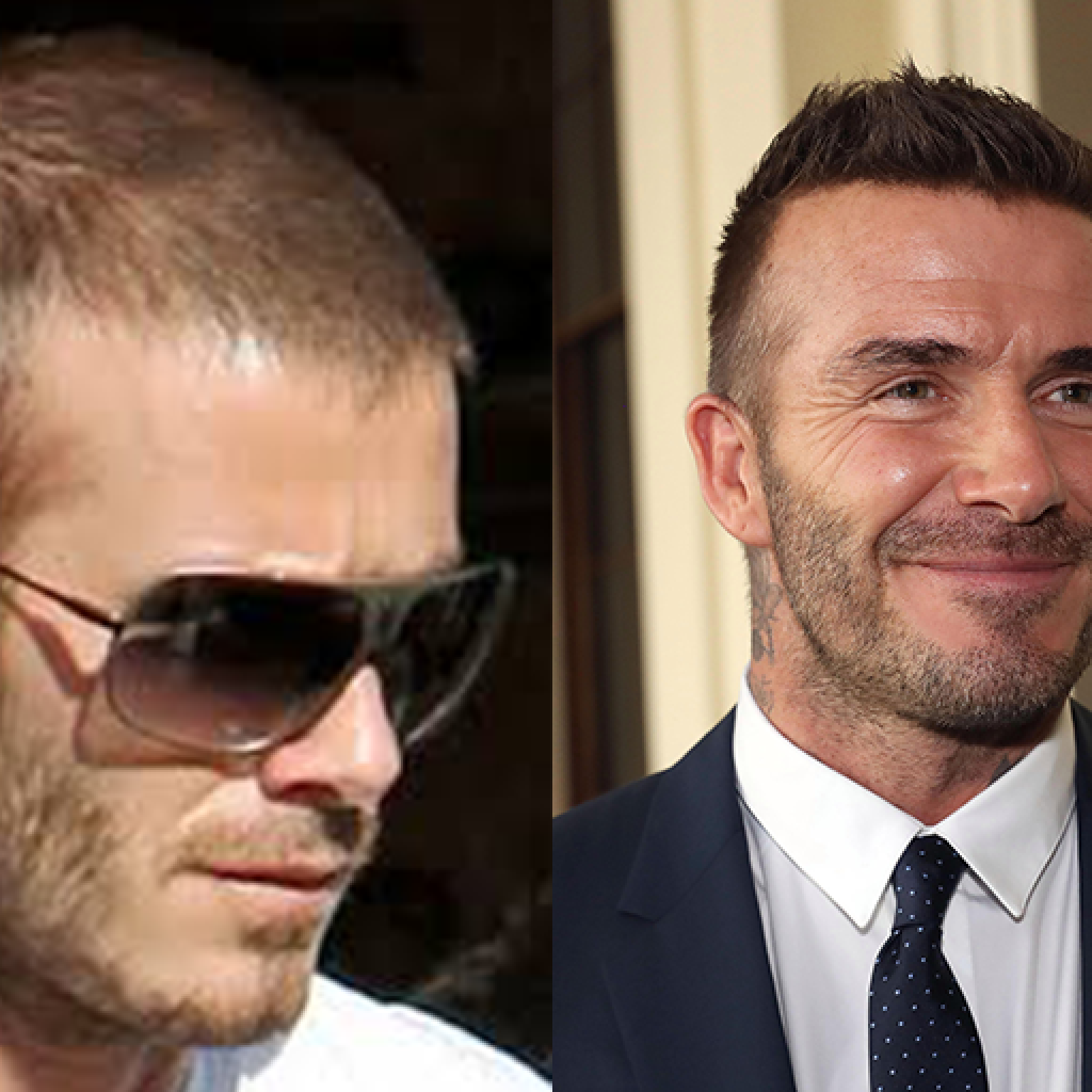 Did David Beckham have a hair transplant? Media outlets are wondering after looking at these images.