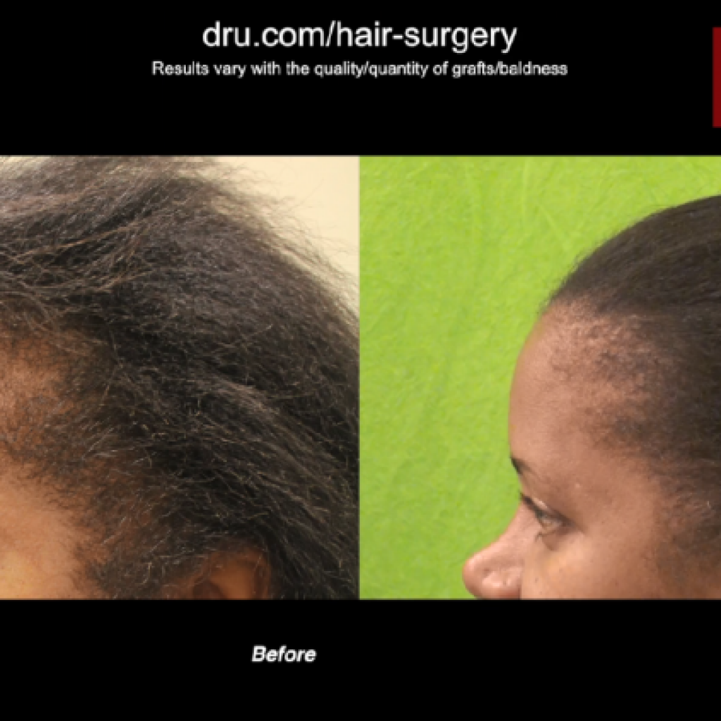 One of our most successful examples of Afro-textured FUE hair restoration to date.*