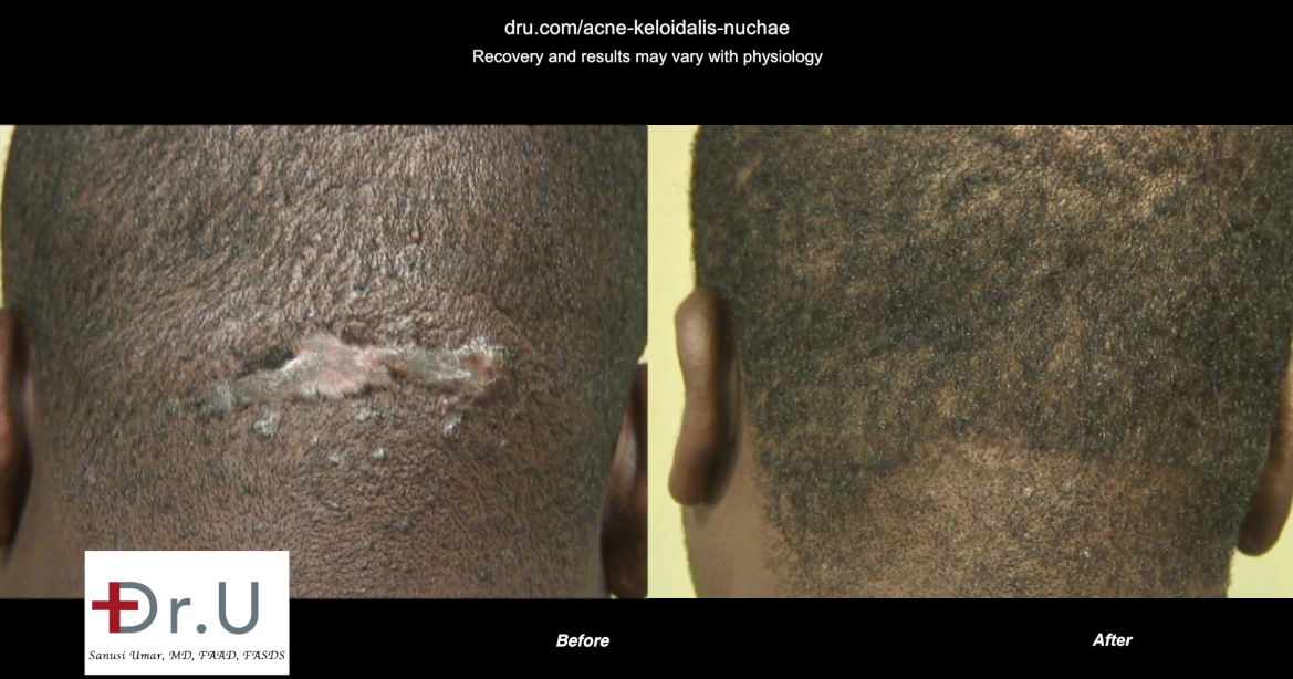 Trichophytic closure results in a thin linear scar through which the patient's own hair grows through