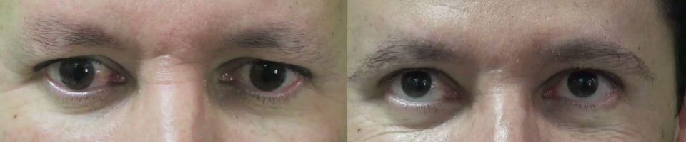 This patient was a good candidate for a male eyebrow transplant procedure. He wanted to restore his eyebrow hair loss, so he approached Dr. U for a result with a subtle look but lasting impression.